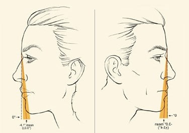 Rhinoplasty Combined with other Facial Surgery to Create a Balanced Profile