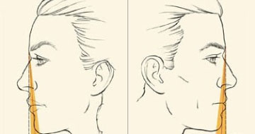 female male chin augmentation diagram