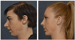 Secondary Rhinoplasty Combined with Chin Implant