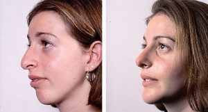 Rhinoplasty with Chin Implant by Dr Hodgkinson