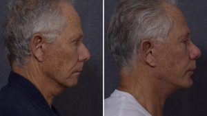 Rhinoplasty Combined with Face Lift and Chin Implant by Dr Hodgkinson