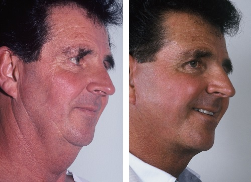 Male Facelift 6 months Post Operation