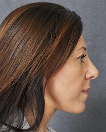 Facelift for Women