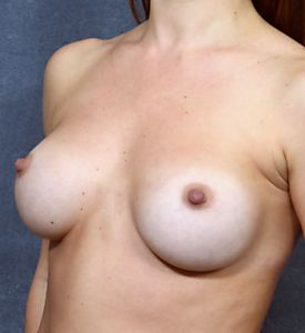 14 Years After Breast Augmentation